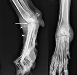 patologia anquilosis articular